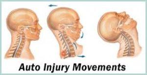 auto accident injury Shakopee MN