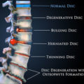 Disc Bulge treatment options from Shakopee Chiro!