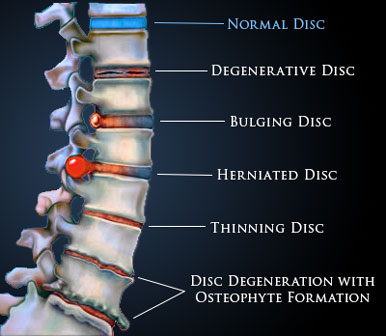 Disc Bulge Treatment Options From Shakopee Chiro